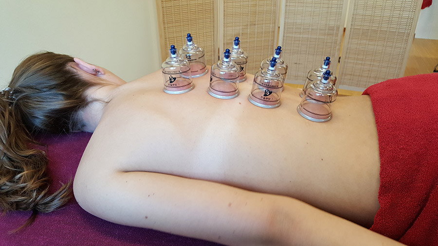cupping-resize.jpg